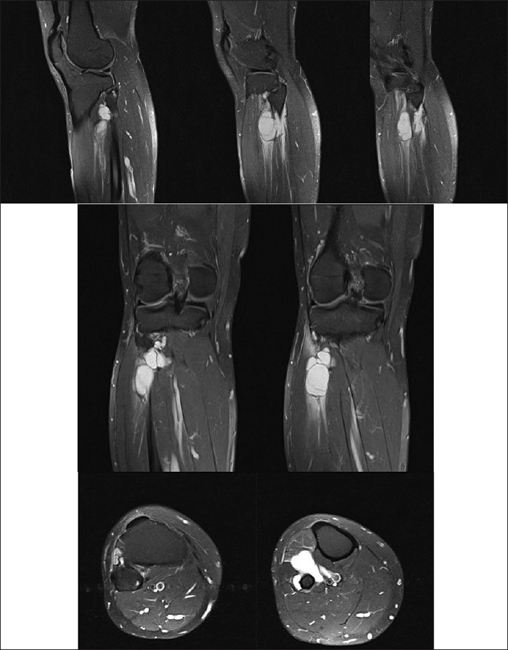 Extraneural cyst compression of the common and deep peroneal