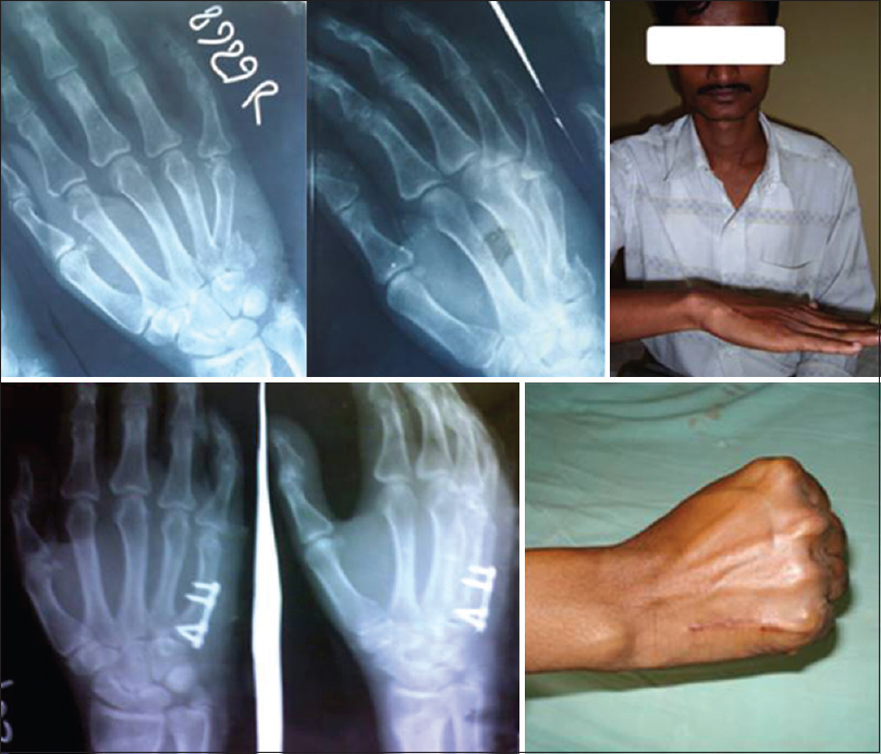 Functional outcome of closed metacarpal shaft fractures managed by ...
